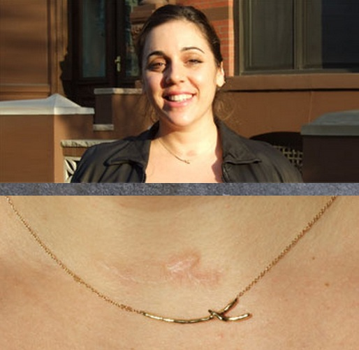 thyroid-scar-necklace